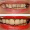 Smile Makeover: Porcelain Crowns, Denture, Gum Recontouring