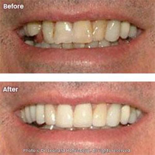 Smile Makeover: Implant, Crowns & Veneers