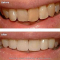 Smile Makeover: Porcelain/Ceramic Veneers and Tooth Whitening