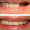 Dental Implant & Porcelain Bridge