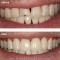 Smile Makeover: Ceramic Crowns, Gum Treatment and Orthodontics