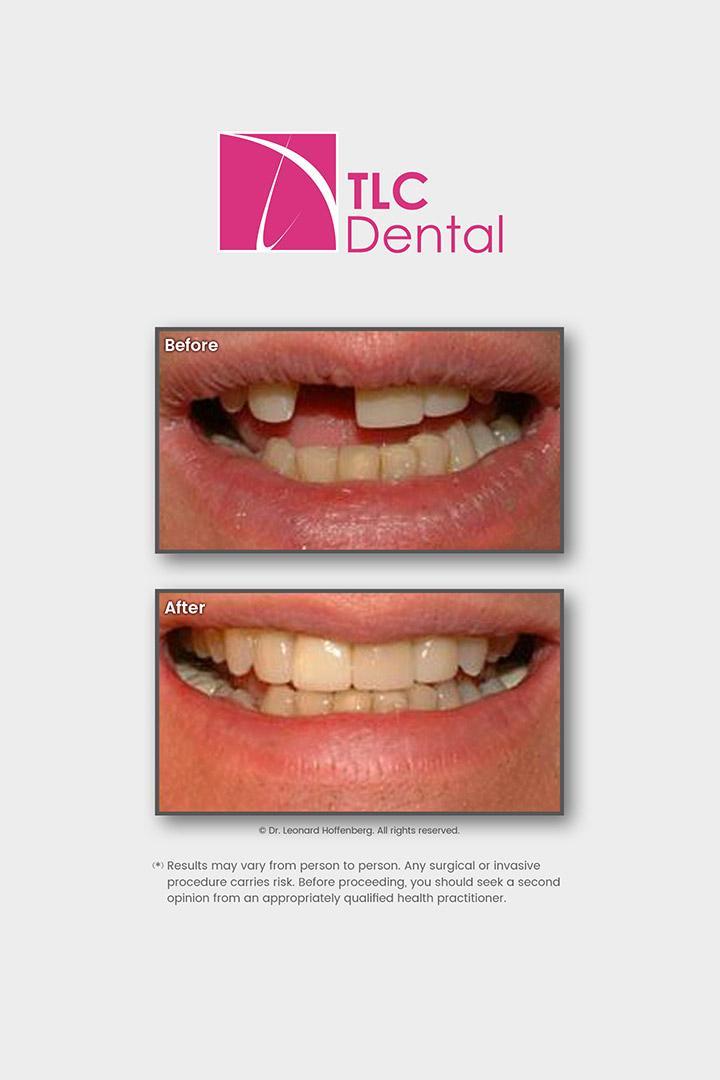 Dental Implant & Porcelain Crown