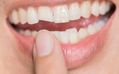 Dealing With a Broken Tooth – Dental Emergencies